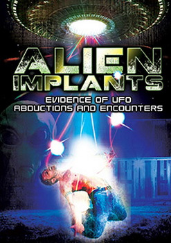 Alien Implants: Evidence Of Ufo Abductions & Encounters (DVD)